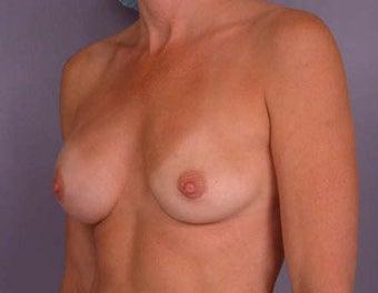 Breast Augmentation before 281422