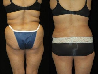 63 year old woman SmartLipo Waist and Flanks before 833663