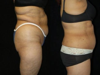 63 year old woman SmartLipo Waist and Flanks 833663