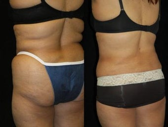 63 year old woman SmartLipo Waist and Flanks after 833663