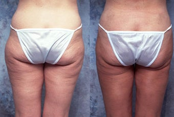 Tumescent body liposuction before 123113