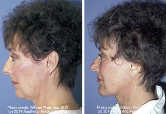 Face lift with chin implant side view before 6766