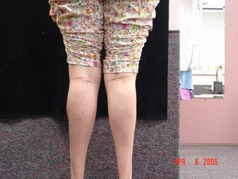 Calf Implants after 692838