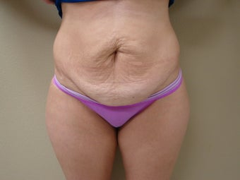 Skin Only Tummy Tuck before 1004761