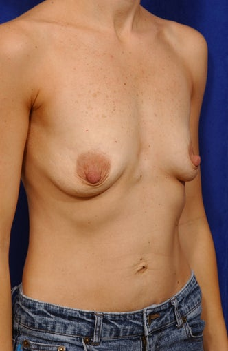 Breast Lift with Saline Implants before 57023