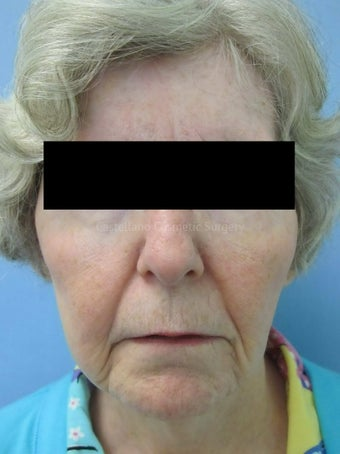 Wrinkle treatment on woman's lip, jaw and cheek areas before 851432
