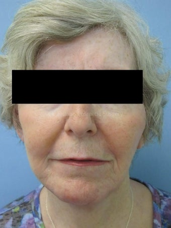 Wrinkle treatment on woman's lip, jaw and cheek areas after 851432