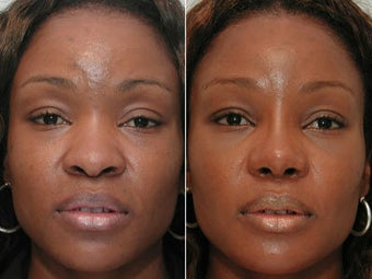 African American Rhinoplasty before 44105