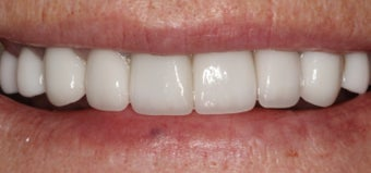 Porcelain Crowns and Porcelain Veneers after 889467