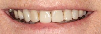 Porcelain Crowns and Porcelain Veneers before 889467