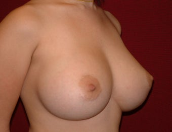 Breast Implants after 683412