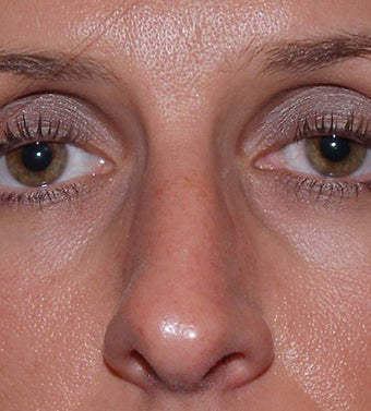 Open Rhinoplasty before 182602