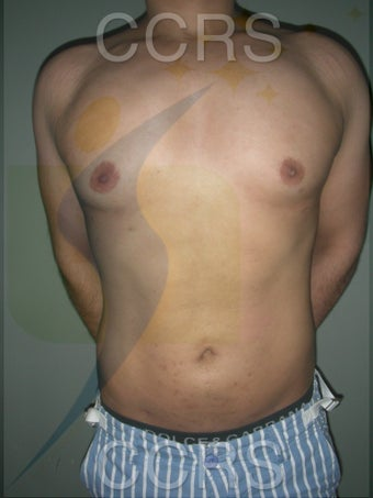 VASER Lipo - 28 yrs. old male (abdomen, back & chest) after 636089