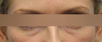 Restylane under eye treatment before 1184722