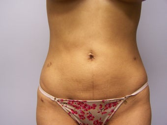 Liposuction after 911466