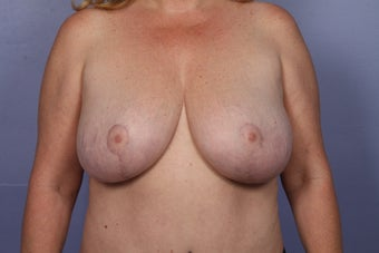 Breast Reduction after 687551