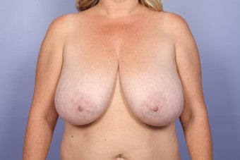 Breast Reduction before 687551