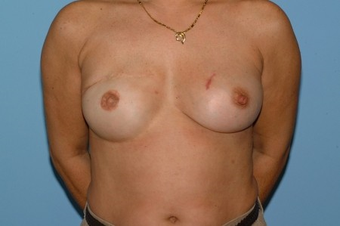 Patient had a Breast Reconstruction. before 963252