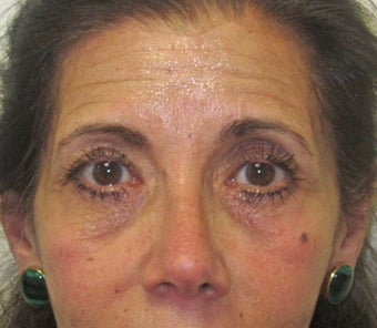 Facial wrinkles, lower lid rhytids (wrinkles) and tear trough hollows. Note the mild right brow ptosis prior to botox. before 1034848