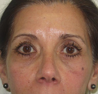 Facial wrinkles, lower lid rhytids (wrinkles) and tear trough hollows. Note the mild right brow ptosis prior to botox. after 1034848