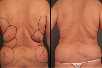 Pure Tumescent Liposuction before 996366