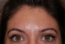 Botox to glabella after 667224