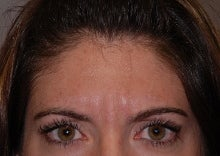 Botox to glabella before 667224