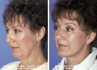 Chin Implant before 91337