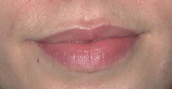 Lip Augmentation before 91091