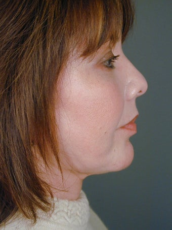 Female Chin Implant after 831856