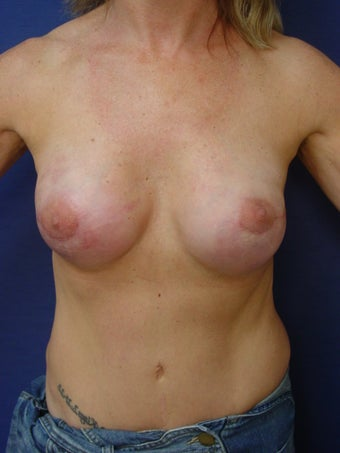 Breast Reconstruction after 291851