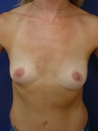 Breast Reconstruction before 291851