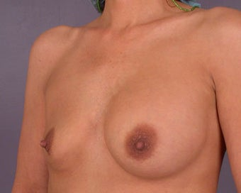 Breast Implant Correction before 281307