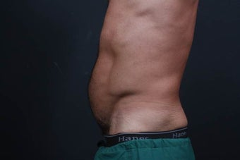 Athletic male who benefited from endoscopic lower abdominal wall tightening. before 659800
