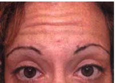 Botox Injections before 1223303