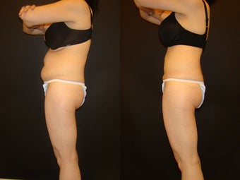 44 Year Old Female with SmartLipo to her abdomen before 1011862