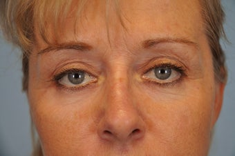 Hetter Peel on lower eyelids.  after 857419