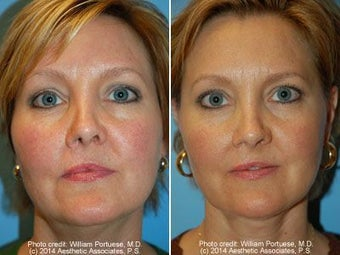 Neck Liposuction before 212295