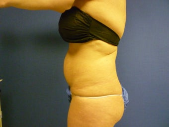Lipsuction of Abdomen and Waist 762359