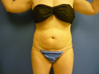 Lipsuction of Abdomen and Waist before 762359
