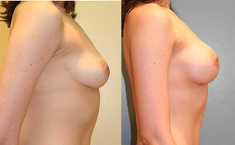 Breast Augmentation (A cup to C cup) before 96468