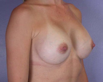 Breast Augmentation after 281427