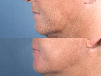 Laser Resurfacing before 104655