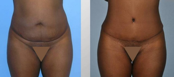 Tummy Tuck (Abdominoplasty) before 258057