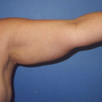 Arm Liposuction before 652127