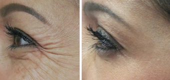 Botox for treatment of crows feet before 987773