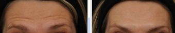 Before and After BOTOX® Cosmetic  - frown lines, forehead lines, crow's feet 631340