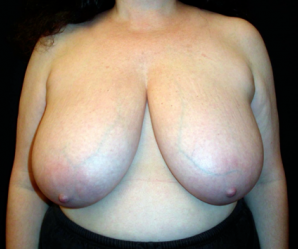 Breast Reduction  before 1357657