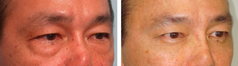 Asian Male Blepharoplasty before 1148212