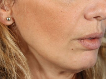 Radiesse filler for jowls and nasolabial folds (liquid facelift) after 936993